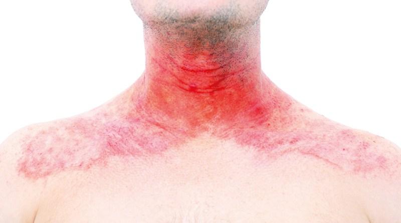 Entzündeter Hals. Roter Hals. quälender Juckreiz. Neurodermitis