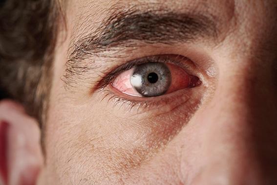 Rotes Auge eines Mannes. Close up. Pollenallergie