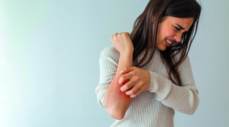 Neurodermitis, Frau kratzt sich auf Unterarm, starker Juckreiz