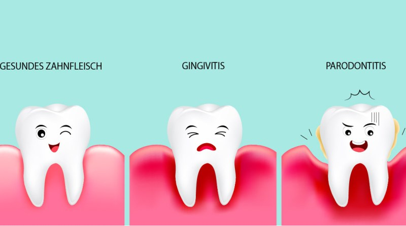 Zahnfleischveränderungen. Gesundes Zahnfleisch. Gingivitis. Parodontitis. Veränderungen des Zahnfleischs