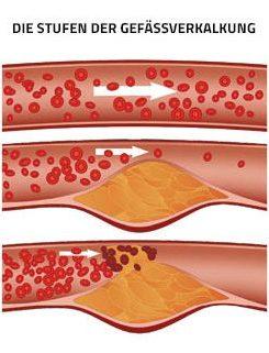 Stufen der Gefäßverengung grafisch dargestellt. Thema Herzgesundheit