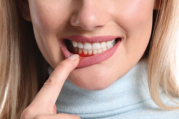 Frau mit Zahnfleischentzündung. Closeup. Zahnverlust durch parodontitis