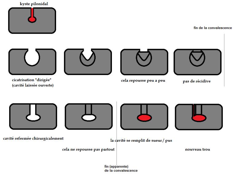 schéma kyste pilonidal