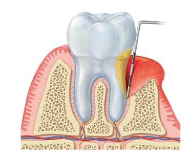 Parodontopatija-bolest savremenog čoveka