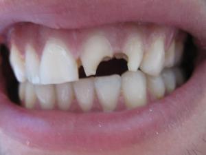 Patient 4 (image 1)