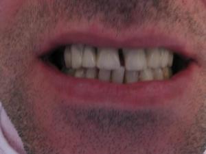 Patient 6 (image 1)