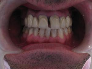 Patient 6 (image 2)