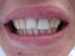 Patient 11 (image 1)