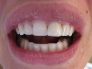 Patient 11 (image 2)