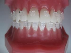 ortodontske-bravice-005