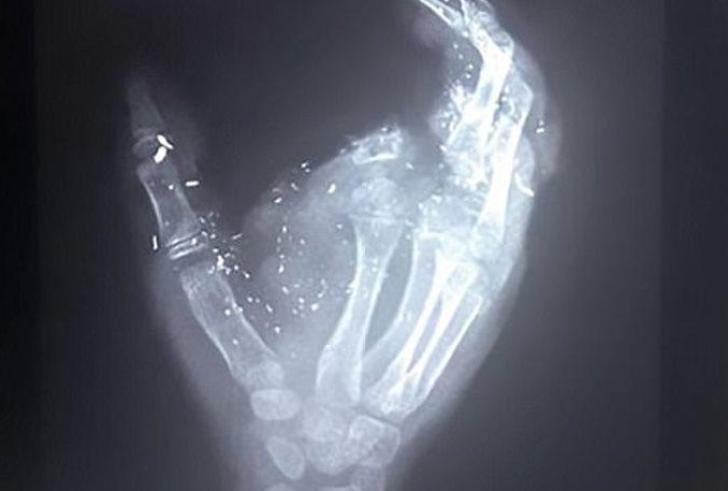 Δωδεκάχρονο αγόρι έχασε το δάχτυλο και το μάτι του όταν εξερράγη το κινεζικό του τηλέφωνο