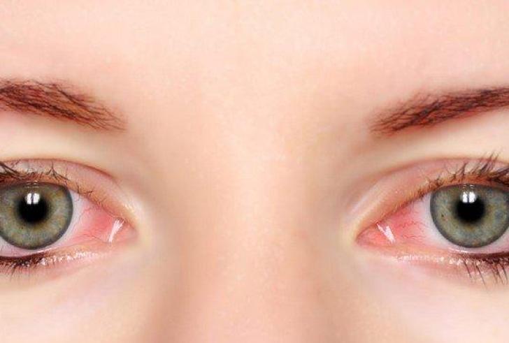 Που οφείλεται το κοκκίνισμα των ματιών και γιατί γίνεται συχνότερο το καλοκαίρι