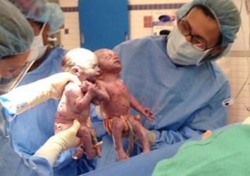 Δίδυμα γεννήθηκαν πιασμένα χέρι-χέρι!