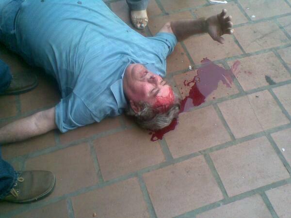 Opositores caprilistas hirieron a este hombre en ciudad Ojeda, Zulia, luego de que Capriles llamara a descnocer los resultados de las elecciones del 14-A