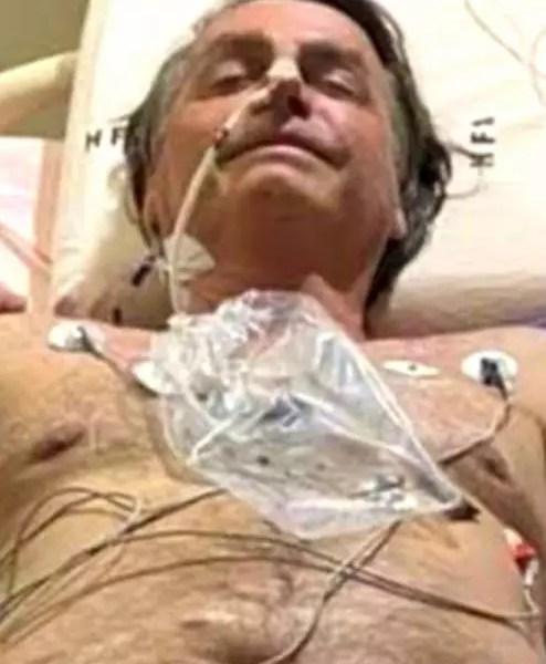 Médicos teriam retirado 1 kg de conteúdo fecal de Bolsonaro pelo nariz