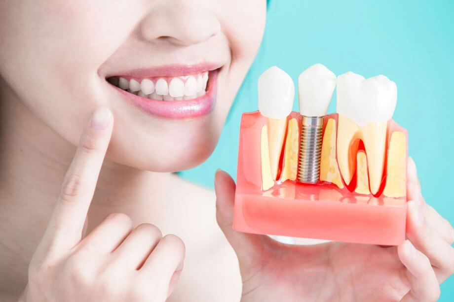 Improving Oral Health and Confidence with Implant Treatments