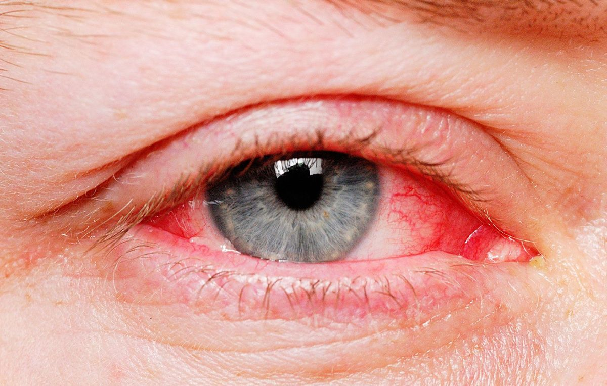 Common Eye Problems and Prevention: