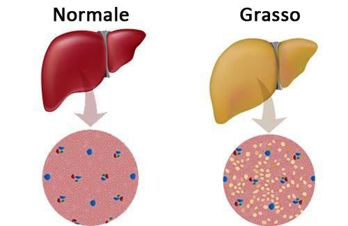 """Fegato """"grasso"""": senza farmaci si può curare"""