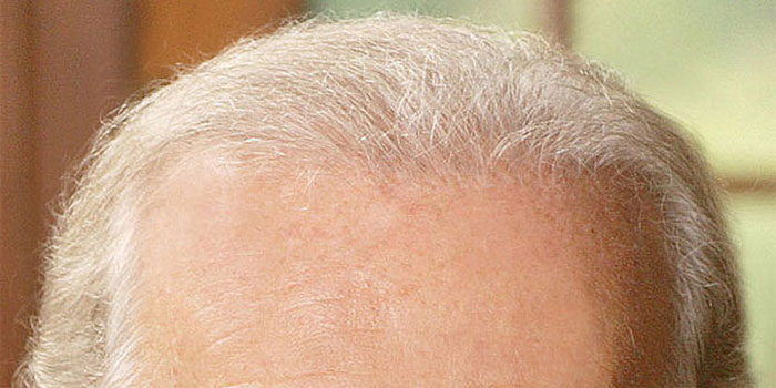 Close up of Joe Biden's hair plugs