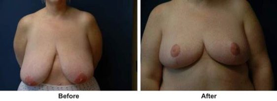 Why Would Someone Get a Breast Reduction