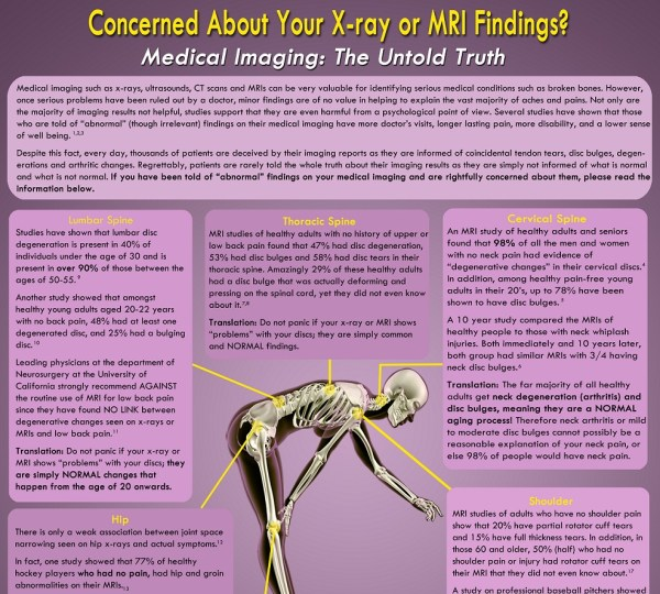 Vomit Radiology Facts Wall Poster Advanced Physical