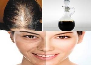 الخل الأسود وفوائده المذهلة للبشرة والشعر