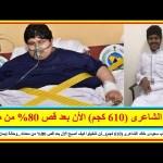 أضخم شاب سعودى خالد الشاعرى (610 كجم)…كيف أصبح الأن بعد قص 80% من معدته…وحالة إيمان عبد العاطى