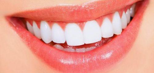 اسعار تلبيس الاسنان في المهيدب