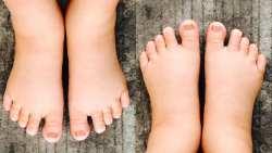 الأسباب الرئيسية لتورم القدمين