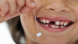 تفسير حلم سقوط الاسنان لابن سيرين