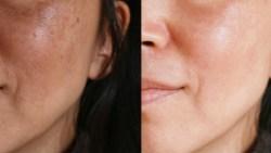 خلطات لازالة البقع والكلف من الوجه