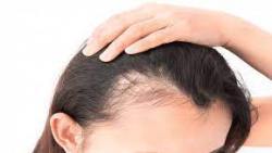 خلطات لمنع تساقط الشعر وتكثيفه وتطويله