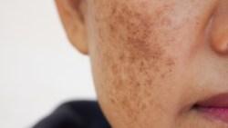 كيفية التخلص من البقع البنية في الوجه