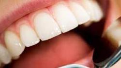 كيفية علاج تسوس الاسنان في المنزل طبيعيا