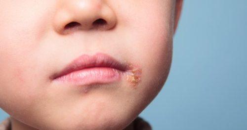ما هو مرض الهربس عند الاطفال