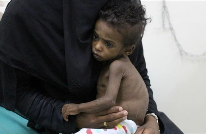 ثلثا سكان اليمن يعيشون في مناطق موبوءة بالملاريا