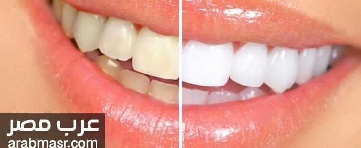 ازالة طبقة البلاك الجير وقتل البكتريا وتبيض الاسنان بخطوة واحدة | شبكة عرب مصر