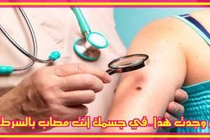 الشامات الموجوده فى الجسم تسبب السرطان بنسبة 50 فى المائة | شبكة عرب مصر