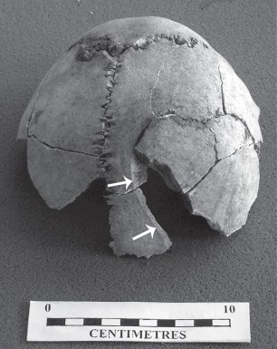 FIG-78
