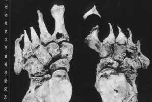 Armoy-feet-with-leprosy