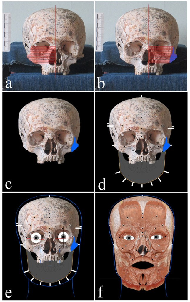Different stages of the facial reconstruction process