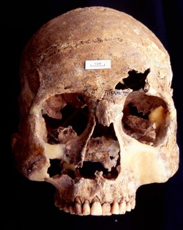 The skull of the man known as G511 who had suffered traumatic combat injuries, including spear wounds to his forehead
