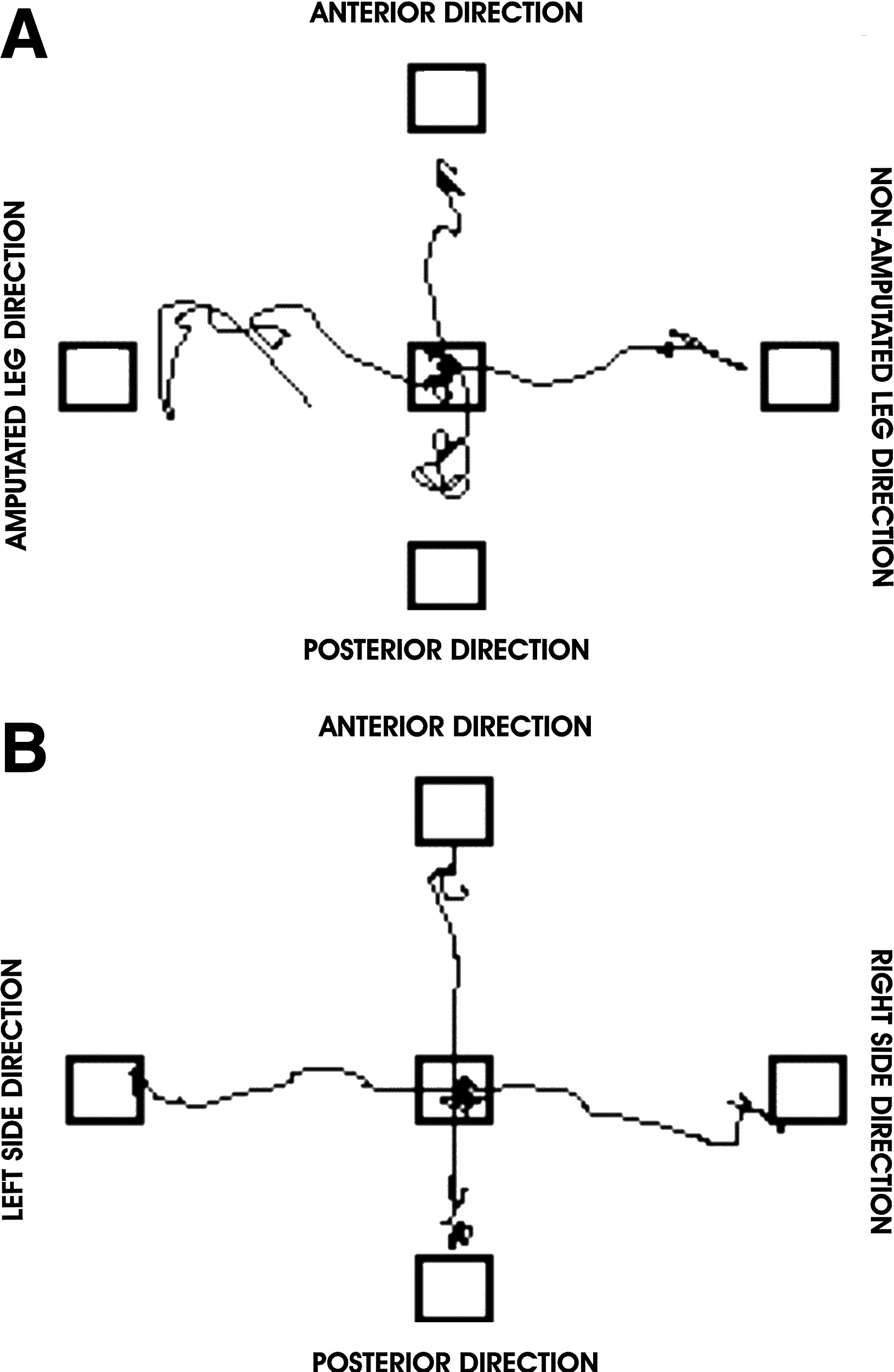 Limits of Stability in Persons With Transtibial Amputation