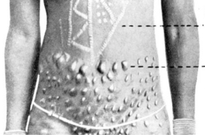 Example of women's cicatrized tinhlanga from early 20th-century southern Mozambique.
