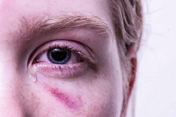 mata sakit Akibat terlalu lama di depan komputer