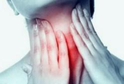 Cara Menghilangkan Lendir di Tenggorokan Dengan Cepat