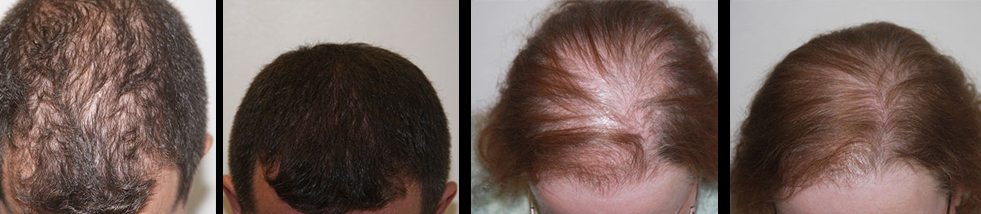 Laser Hair Therapy at Arizona Aesthetics Centers