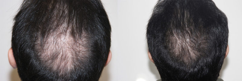 mens-hair-restoration-1