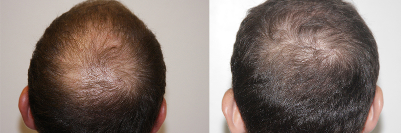 mens-hair-restoration-12