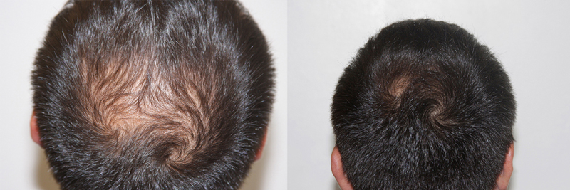 mens-hair-restoration-14